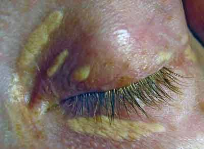 Xanthelasma can be a symptom of high cholesterol